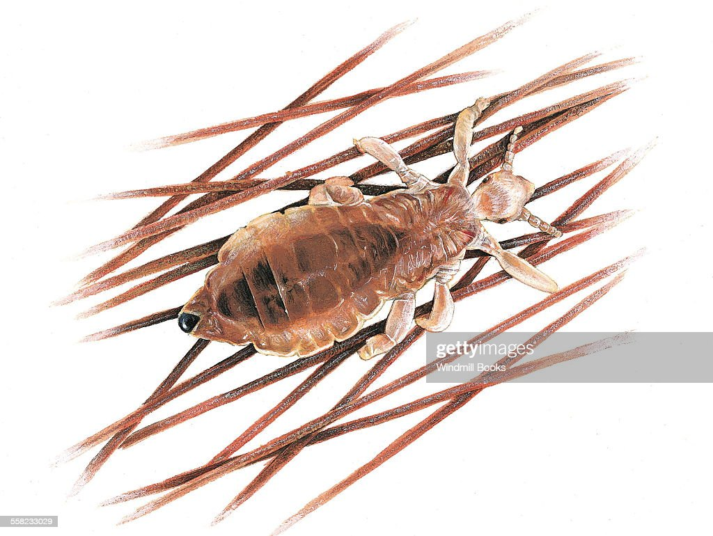 An illustration of a headlouse a wingless insect living on a human scalp