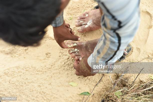 An Indian man applies antifungal cream after remaining in flood waters for a long period of time at Khariya village in Banaskantha district some...