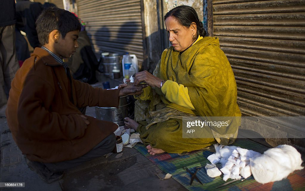 An Indian Sikh medical volunteer treats a street child's wound in the Old Quarters of New Delhi early on February 7, 2013. Indian medical volunteers have set up roadside clinics in Old Delhi to help treat the homeless, which also includes free medication. The Sikh charity which started the clinic operates it on a daily basis. AFP PHOTO/ Andrew Caballero-Reynolds