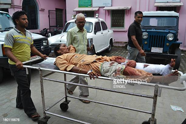 An Indian woman who received a gunshot wound to her leg is pictured at a hospital following communal riots between Muslims and Hindus in...