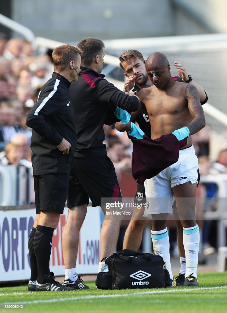 An injured Andre Ayew of West Ham United is given assistance during the Premier League match between Newcastle United and West Ham United at St. James Park on August 26, 2017 in Newcastle upon Tyne, England.
