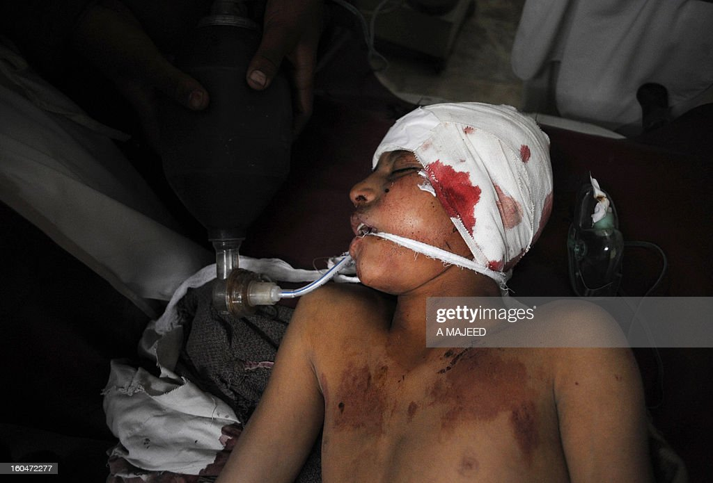 An injured bomb blast victim receives treatment at a hospital in Peshawar on February 1, 2013, after an explosion outside a Shiite Muslim mosque in Hangu. A suicide bomber targeted a Shiite Muslim mosque in northwest Pakistan on Friday, killing 21 people and wounding up to 50 as worshippers poured out of weekly prayers, officials said.