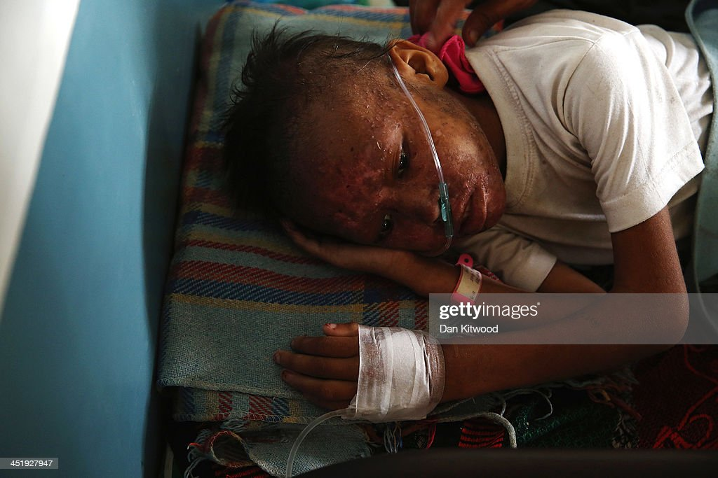 An injured child lies in a bed in the children's and maternity ward at the Eastern Visayas Medical Centre in Tacloban on November 20 2013 in Leyte...