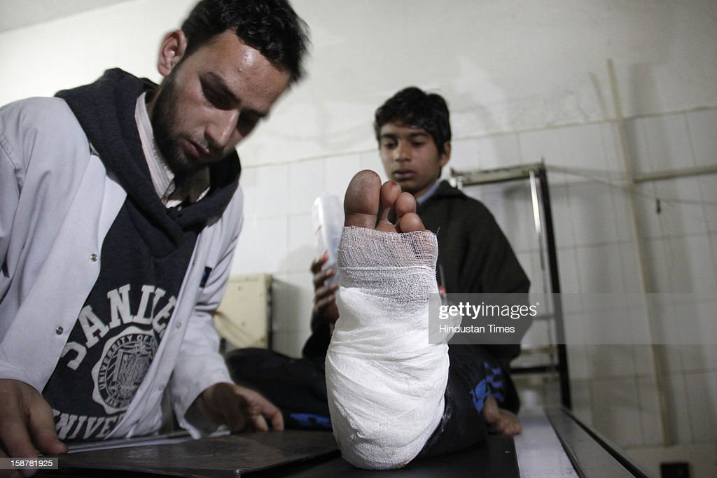 An Injured Civilian being treated at SMHS Hospital following an encounter between army and militants in Pulwama district of South Kashmir, on December 28, 2012 in Srinagar, India. Two top Lashkar-e-Taiba (LeT) militants were killed, while one Major, one captain of army, one policeman and Seven Civilians were injured in the encounter.