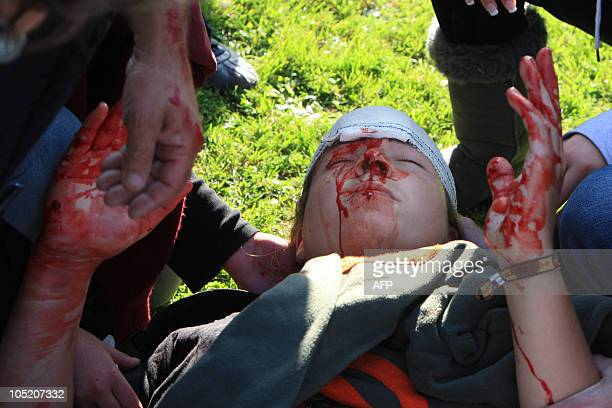 An injured demonstrator is bleeding as poeple clash with antiriot policemen in front of the Employers' union Medef regional headquarters on October...