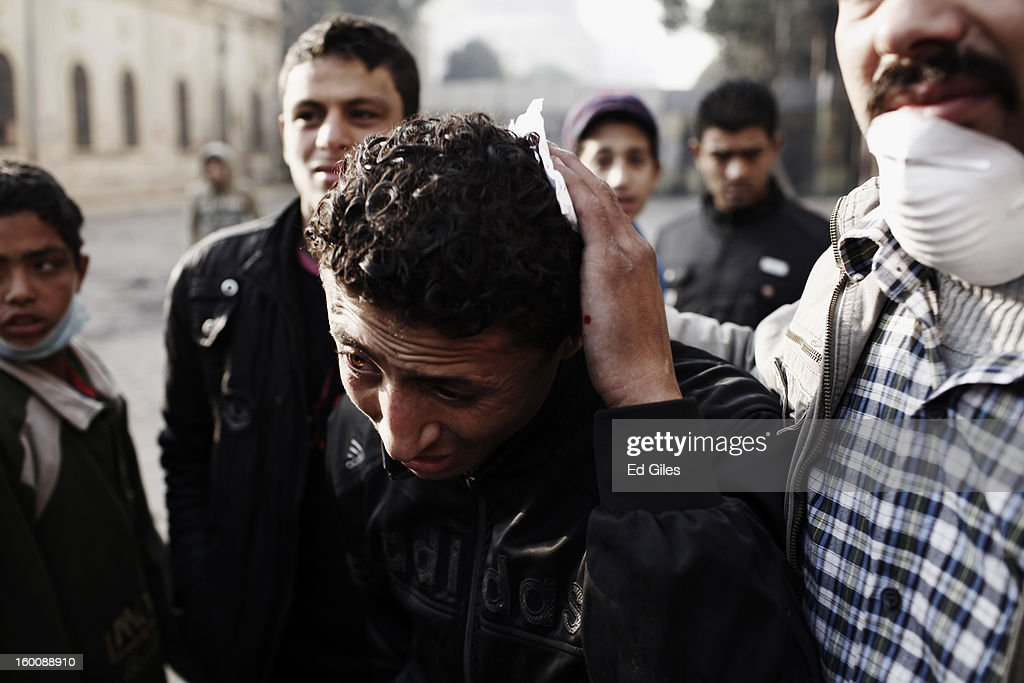 An injured Egyptian protester is led away from clashes between demonstrators and police during a protest in Tahrir Square on January 26, 2013 in Cairo, Egypt. Further protests are expected today after thousands of protesters converged on the capital's iconic Tahrir Square yesterday on January 25 to mark the second anniversary of the overthrow of former President Hosni Mubarak's regime. (Photo by Ed Giles/Getty Images).