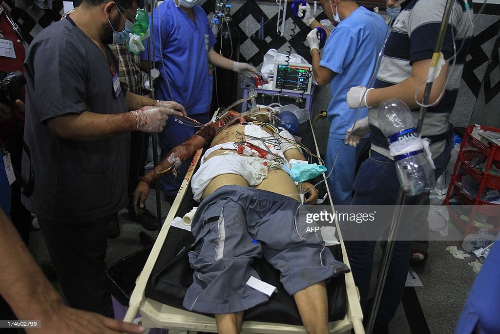 An injured Egyptian supporter (C) of the deposed Egyptian president Mohamed Morsi is given medical aid by doctors in a field hospital after clashes with riot policemen in Cairo early on July 27, 2013. Mass rallies by supporters and opponents of Mohamed Morsi swept Egypt Friday, as the authorities formally detained the ousted Islamist president accusing him of conspiring with the Palestinian group Hamas.