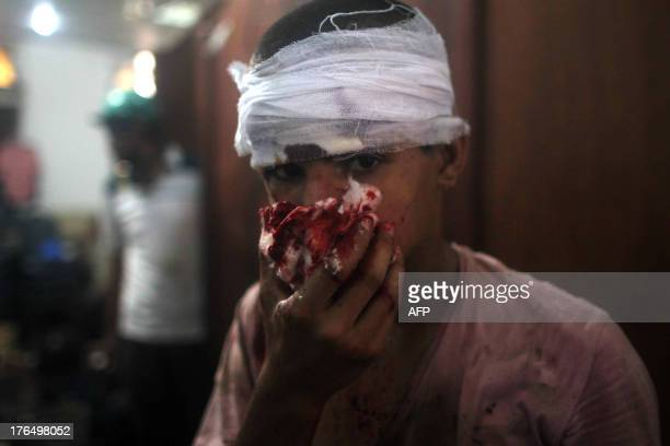 An injured Egyptian youth is seen at a makeshift hospital during clashes between supporters of Egypt's ousted president Mohamed Morsi and police in...