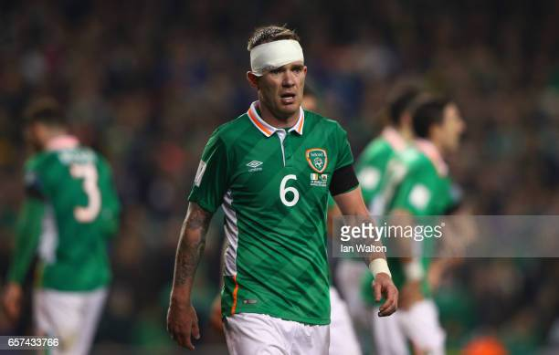 An injured Glenn Whelan of the Republic of Ireland looks on as he wears a head bandage during the FIFA 2018 World Cup Qualifier between Republic of...