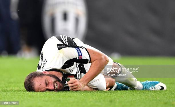 An injured Gonzalo Higuain of Juventus reacts during the UEFA Champions League Semi Final second leg match between Juventus and AS Monaco at Juventus...
