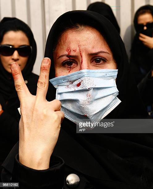 An injured Iranian opposition supporter flashes a Vsign during clashes with security forces in Tehran on December 27 2009 At least five protesters...