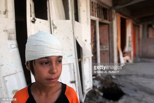 An injured Iraqi boy looks on in front of a damaged shop a day after a car bomb attack on July 23 2015 on a busy commercial street in the western...
