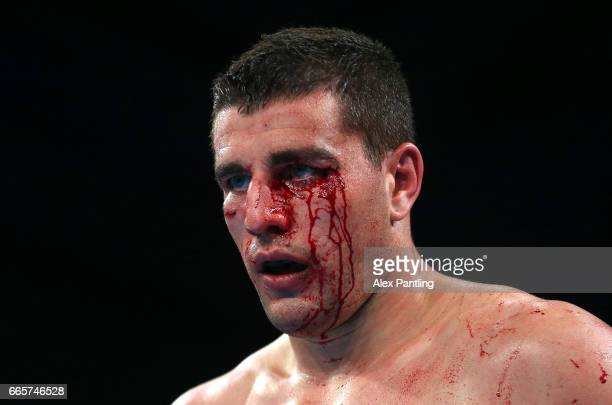 An injured JosipBepo Filipi of British Lionhearts looks on during his fight against Alen Babic of France Fighting Roosters during the World Series of...