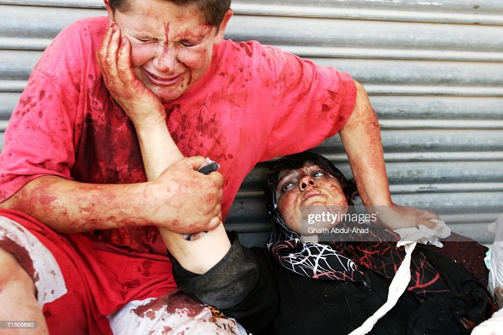 An injured Lebanese boy holds his mothers hand after a rocket from an Israeli aircraft hit their van as they fled their village July 23, 2006 in Tyre, Lebanon. According to reports, at least 130 people have died in Tyre since the begining of the airstrikes.