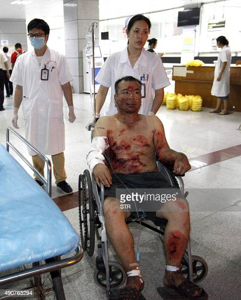 An injured man is given treatment at a hospital after a series of blasts in Liucheng county in Liuzhou south China's Guangxi province on October 1...