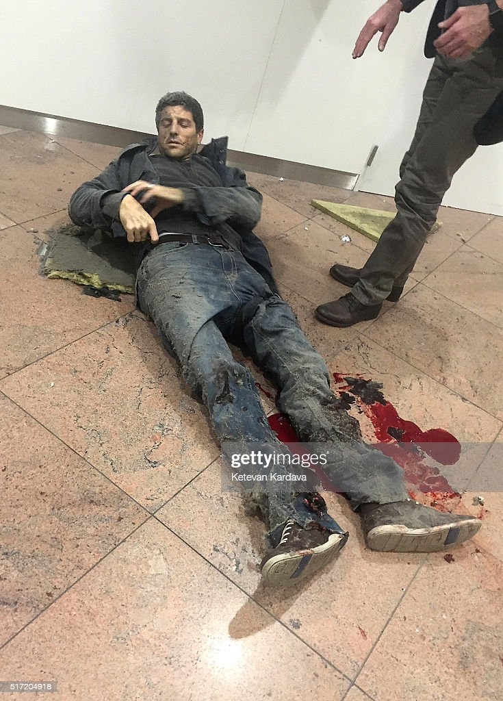 An injured man lies amongst debris following a suicide bombing at Brussels Zaventem airport on March 22, 2016 in Brussels, Belgium. Georgian journalist Ketevan Kardava, special correspondent for the Georgian Public Broadcaster, was travelling to Geneva when the attack took place, she was knocked to the floor and began to take photographs in the moments that followed. At least 31 people were killed and more than 260 injured in a twin suicide blast at Zaventem Airport and a further bomb attack at Maelbeek Metro Station. Two brothers are thought to have carried out the attacks and a manhunt is underway for a third suspect.
