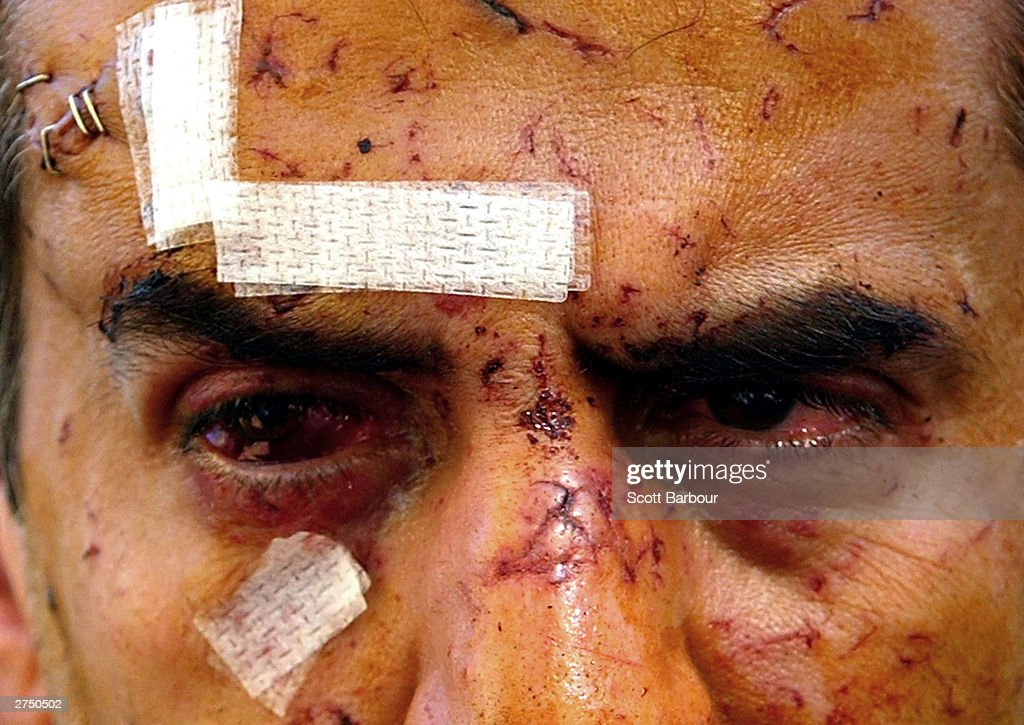 An injured man revisits the scene of the British Consulate bombing November 21, 2003 in Istanbul, Turkey. Bomb attacks on the British consulate and the HSBC bank headquarters on November 20, 2003 killed at least 27 people and left hundreds injured.