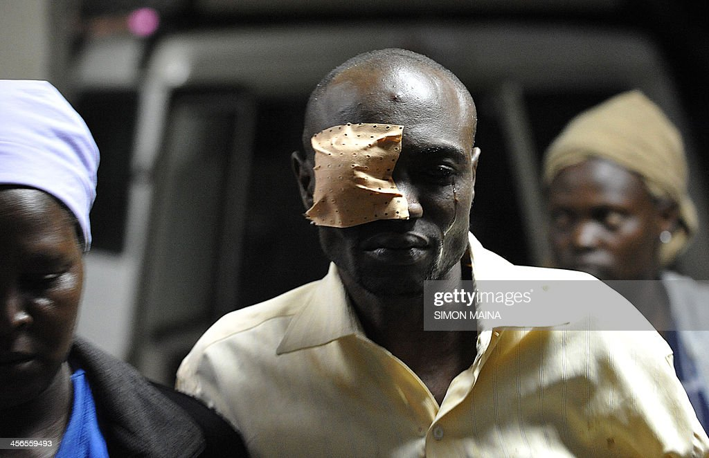 An injured man with an eye patch arrives at the Kenyatta national Hospital, to receive medical assistance after he was injured in an explosion near Nairobi's Eastleigh neighbourhood on December 14, 2013. Four people were killed in Nairobi Saturday when assailants threw a grenade on a bus, the Kenyan interior ministry said. More than a dozen other people on the 32-seat bus were wounded, according to officials and the Kenyan Red Cross.