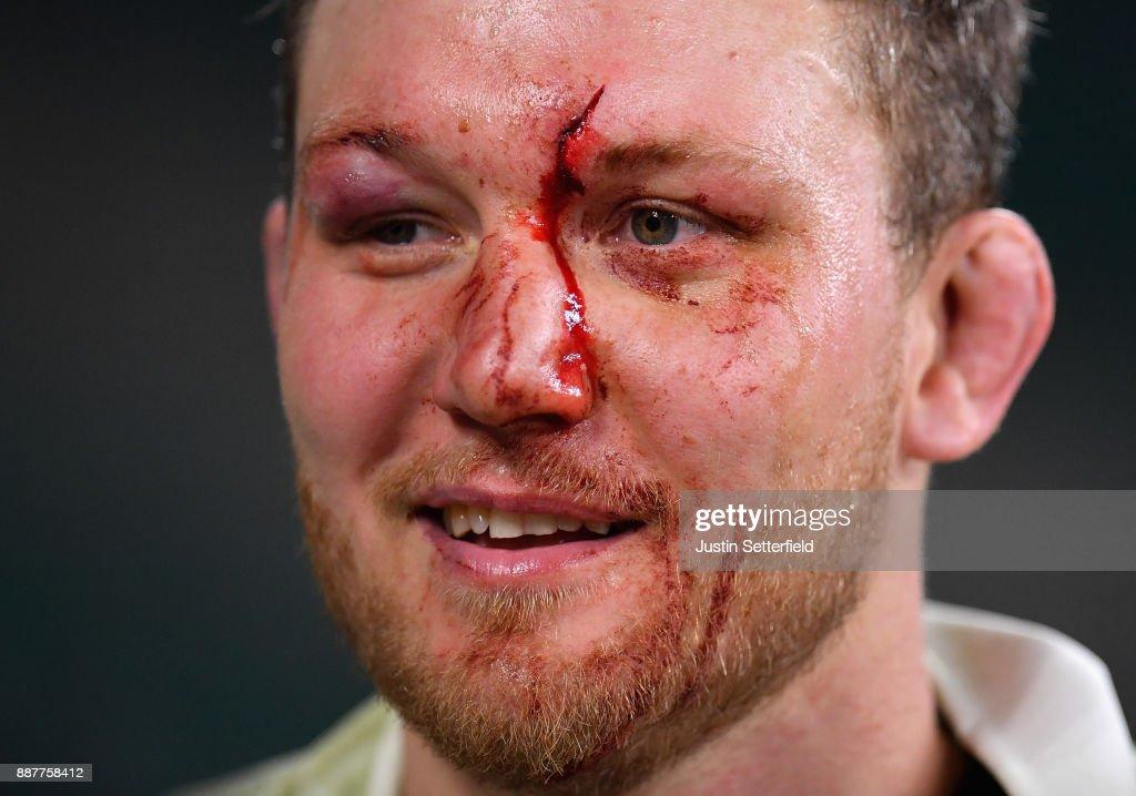 An injured Nick Koster of Cambridge University looks on during the Oxford University vs Cambridge University Mens Varsity match at Twickenham Stadium on December 7, 2017 in London, England.