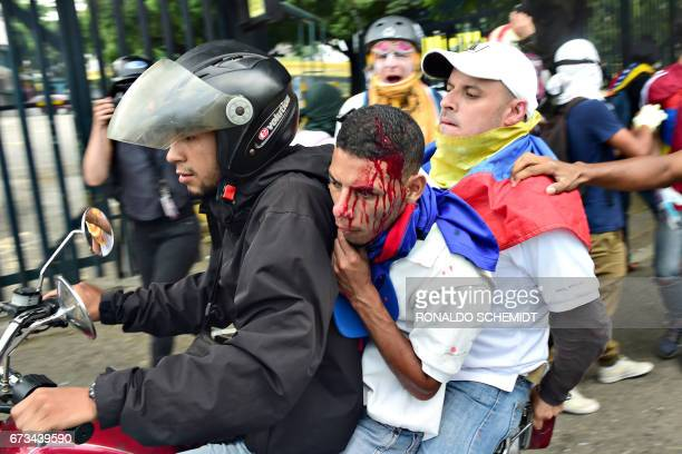 An injured opposition activist is carried away on a motorcycle by fellow demonstrators during clashes with riot police during a protest march in...