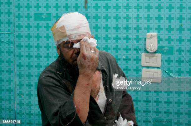 An injured opposition member wipes his eye with a tissue after a suicide attack against Ahrar alSham an armed opposition group that fights against...