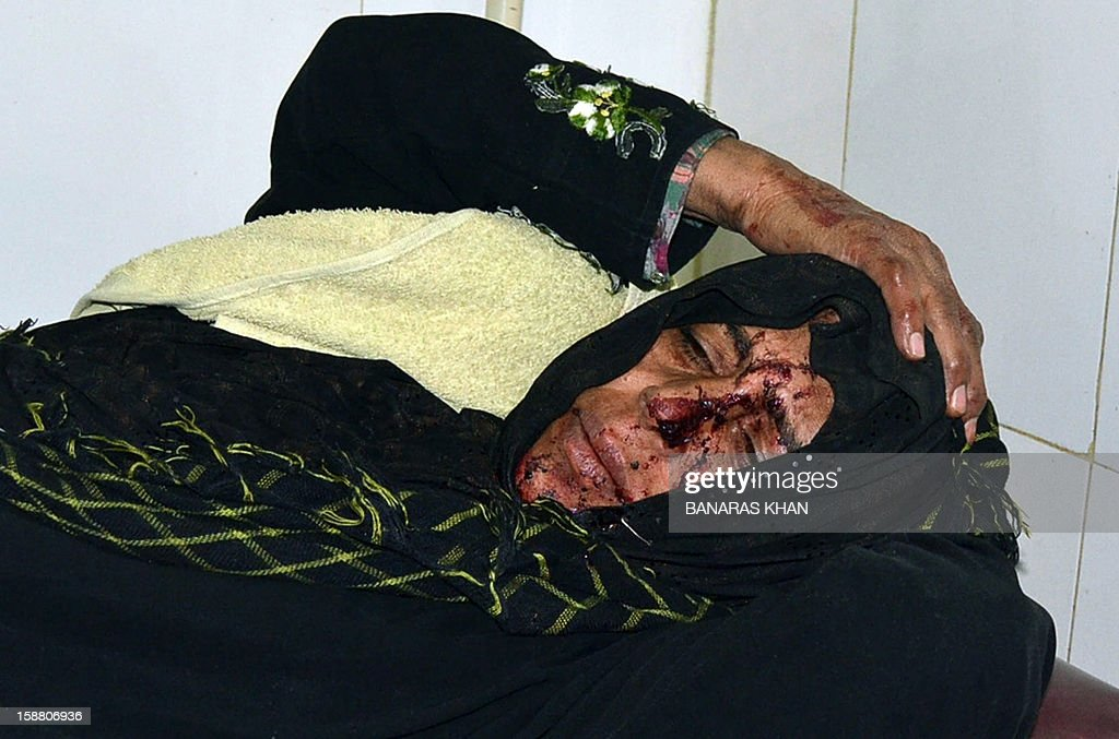 An injured Pakistani Shiite Muslim pilgrim lies on a bed at a hospital following a car bomb attack in Quetta on December 30, 2012. A car bomb attack on buses carrying Shiite Muslim pilgrims to Iran killed 19 people and injured 25 in Pakistan's insurgency-hit southwest on December 30, officials said.