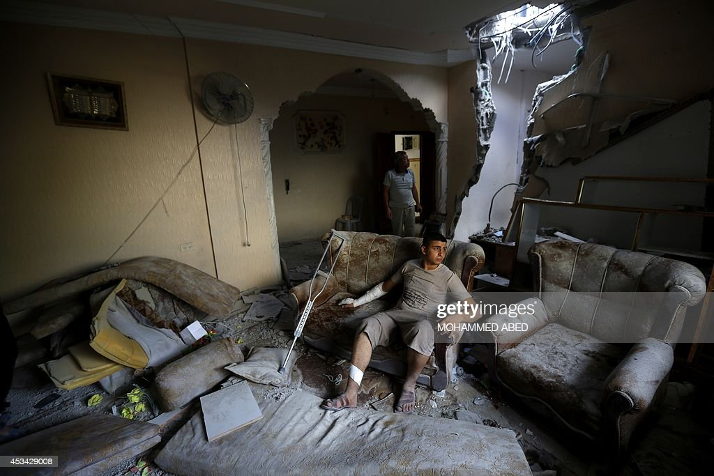 An injured Palestinian man from the AlElaa family sits inside his house after it was hit by an Israeli military strike in the Jabalia refugee camp in...