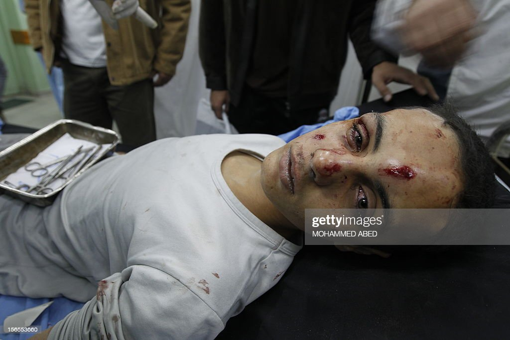An injured Palestinian youth looks on at a hospital following an Israeli air raid in Beit Lahia, the northern Gaza Strip on November 17, 2012. Israeli air strikes hit the cabinet headquarters of Gaza's Hamas government, the group said early on November 17, with eyewitnesses reporting extensive damage to the building.