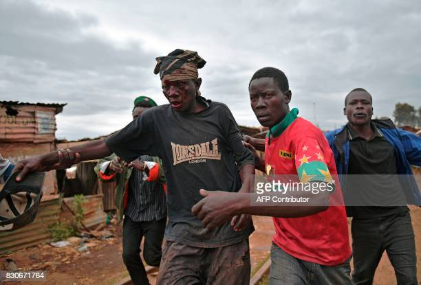TOPSHOT An injured protestor is escorted by people in the Kibera slum in Nairobi on August 12 2017 Three people including a child have been shot dead...