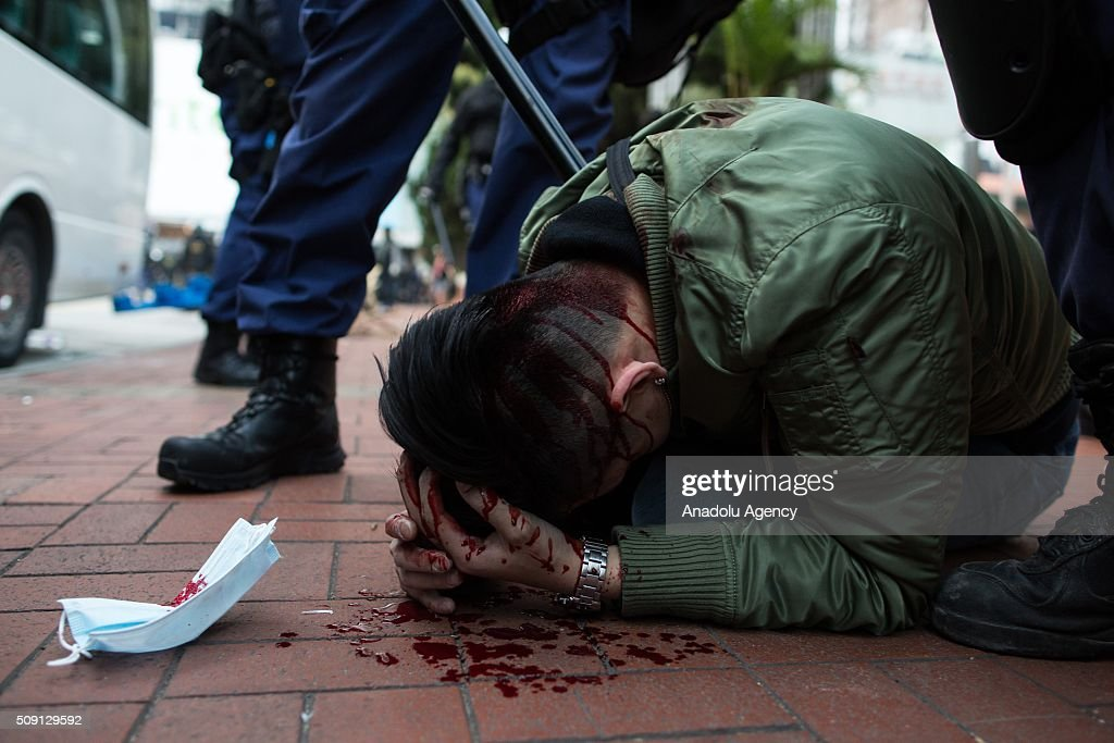 An injured protestors is seen as police officers arrest him during a riot in Mong Kok district of Hong Kong on February 9, 2016 in Hong Kong. More than 40 police officers and journalists have been injured after a riot with protesters on the first day of Chinese New Year celebrations.