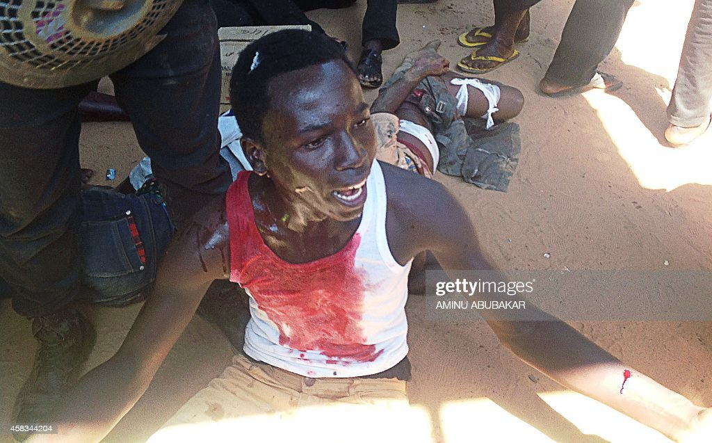 An injured shiite member sits on the ground after a suicide blast in the northeast Nigerian town of Potiskum on November 3 2014 At least 15 people...