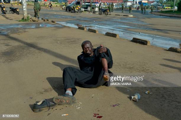 An injured supporter of opposition party National Super Alliance leader Raila Odinga waits for help after being hit by a bullet during clashes with...