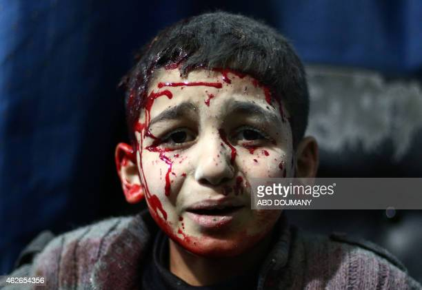 An injured Syrian child waits for treatment at a makeshift hospital in the rebel held area of Douma north east of the capital Damascus following...