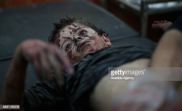 An Injured Syrian kid receives treatment at a field hospital after Assad regime forces' air attacks on an opposition controlled residential area in...