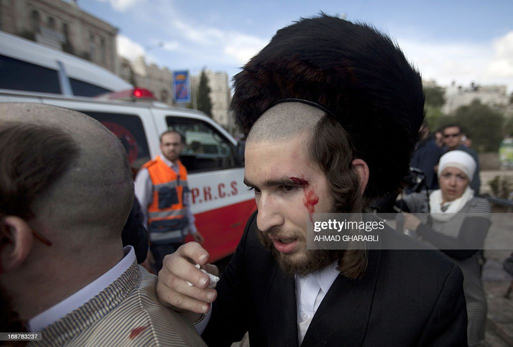 An injured ultra-Orthodox Jewish man is seen after clashes broke out near Damascus gate in Jerusalem on May 15, 2013 as Palestinian protestors rallied to mark the 65th Nakba or 'catastrophe' of the Jewish state's creation in 1948, during which 760,000 Palestinians fled their homes. Thousands of Palestinians took to the streets in the West Bank and the Gaza Strip to demonstrate on Nakba Day and assert their 'right to return' to where their ancestors fled after the Israeli victory over Arab armies.