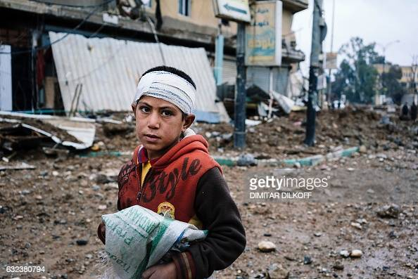 TOPSHOT An Iraqi boy with a bandaged head stands on a street in eastern Mosul on January 22 during the ongoing military operation against the...