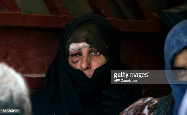 An Iraqi woman who fled the fighting between government forces and Islamic State group jihadists in the Old City of Mosul gazes with a bruised face...