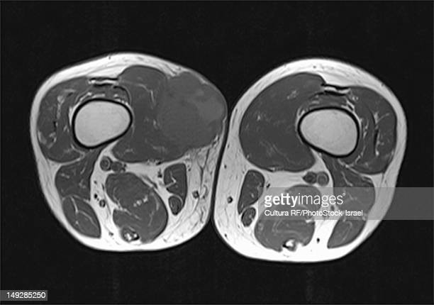 An MRI showing a cross section of a man's thigh