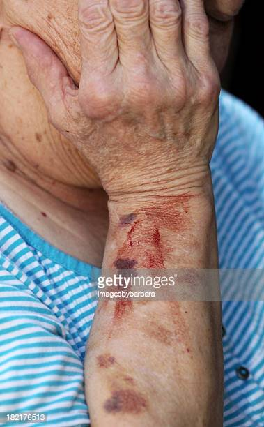 An old man with blood stain on his left arm
