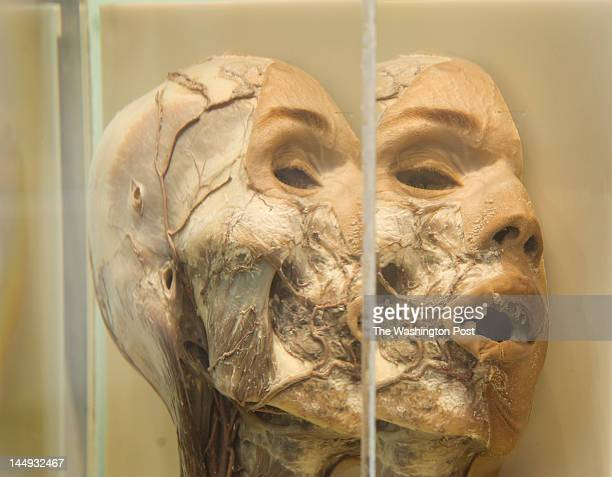 An optical illusion viewing from the side of the plexiglass display case of a preserved healthy human head and neck on display at the new location of...