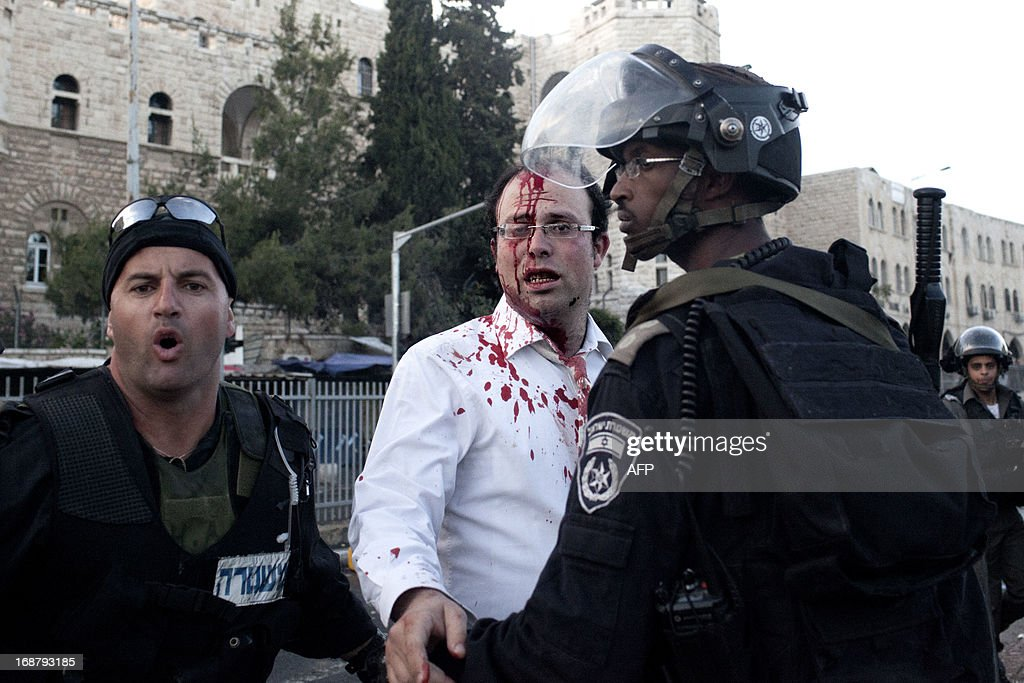 An Orthodox Jew, bleeding after he was hit in the head by a stone, is escorted by an Israeli policeman outside Jerusalem's Damascus Gate to receive medical attention on May 15, 2013. The man was injured during clashes that followed a rally by Palestinian protestors to mark the 65th Nakba or 'catastrophe' of the Jewish state's creation in 1948, during which 760,000 Palestinians fled their homes. AFP PHOTO/TALI MAYER