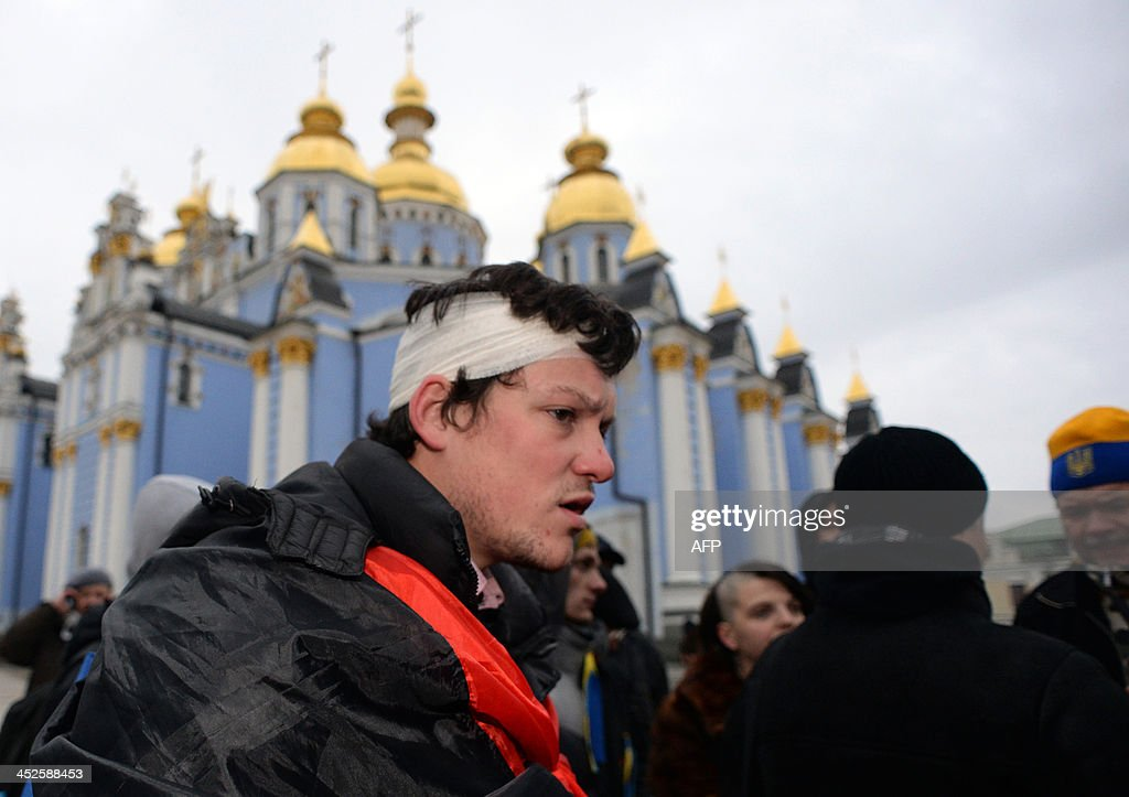 An Ukrainian opposition supporter, wearing a bandage around his head, stands in front of the Mikhailovsky monastery, where members of the opposition gathered after the dispersal of the rally in Kiev on November 30, 2013. Dozens of protesters were wounded in Ukraine's capital early Saturday when police brutally dispersed demonstrators calling for President Viktor Yanukovych's ouster after he failed to salvage an EU deal, a lawmaker and a witness said. 'The Maidan has been brutally mopped up,' opposition lawmaker Andriy Shevchenko said on Twitter, referring to Kiev's central Independence Square, the site of the rally and epicentre of the country's 2004 Orange Revolution.