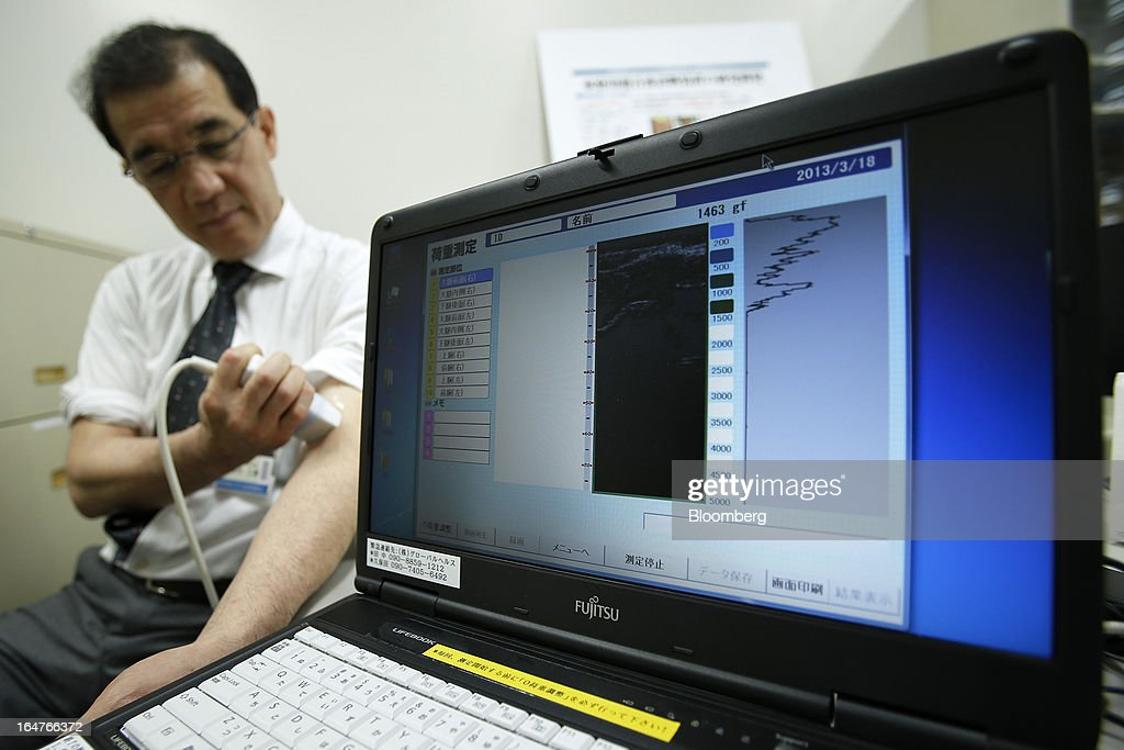 An ultrasonic image of accumulated lymphatic fluid is displayed at the center of a laptop computer screen as Jiro Maegawa, professor of plastic and reconstructive surgery at Yokohama City University (YCU), demonstrates a home-use ultrasonographic device for breast cancer screening at the university's Advanced Medical Research Center (AMRC) in Yokohama City, Kanagawa Prefecture, Japan, on Monday, March 18, 2013. Japan aims to be a nation with the most advanced medical technologies and healthcare services in the world and to develop the medical industries for the revitalization of the country's economy. Photographer: Kiyoshi Ota/Bloomberg via Getty Images