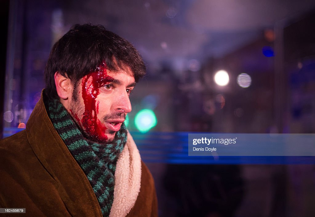 An unidentified journalist looks on after getting injured during disturbances after a march by thousands of people on February 23, 2013 in Madrid, Spain. Public health workers, civil servants and disaffected citizens converged on central Madrid to protest against the austerity measures of Prime Minister Mariano Rajoy.