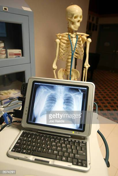 An Xray is shown on a laptop computer monitor during a demonstration of the wireless Carecast health information system June 11 2003 in Hollywood...