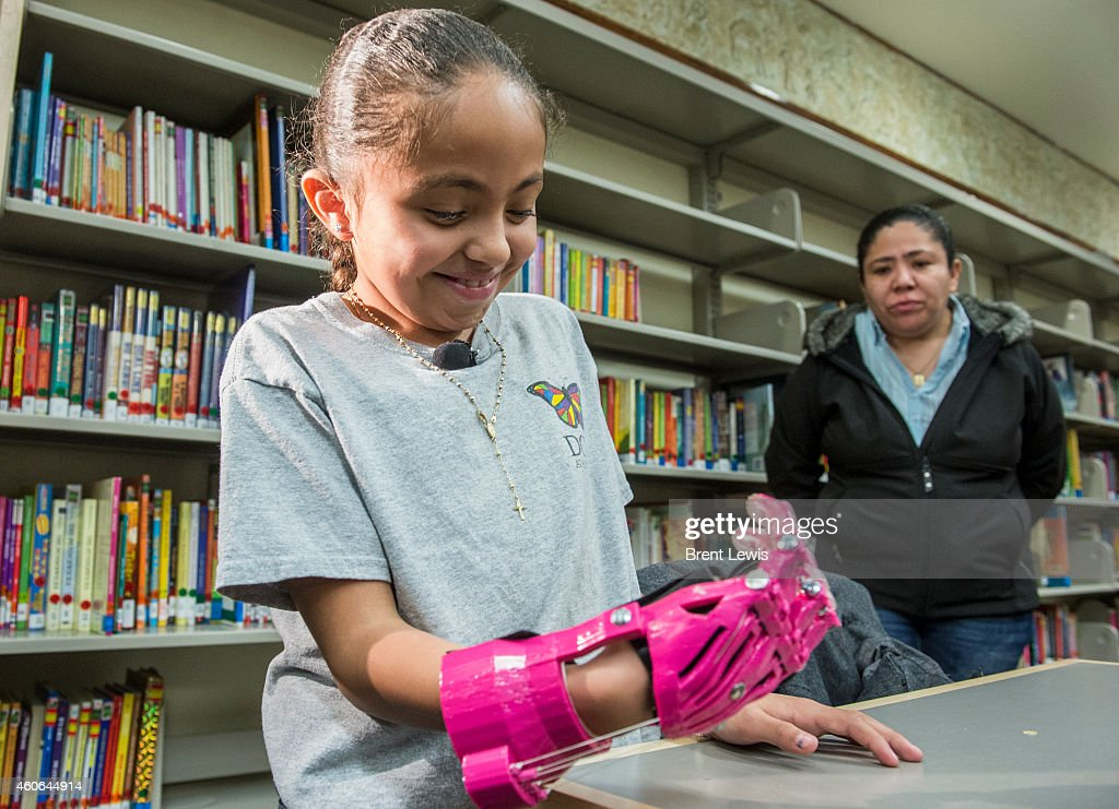 Ana Quiñones looks at her new 3D printed prosthetic hand after putting it on the for the first time while her mother Alma watches Wednesday December...