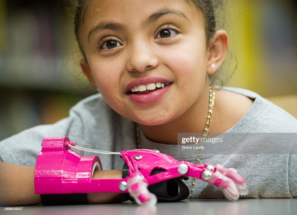 Ana Quiñones talks with school staff about her new 3D printed prosthetic hand Wednesday December 17 2014 at DCIS at Fairmont in Denver Colorado...
