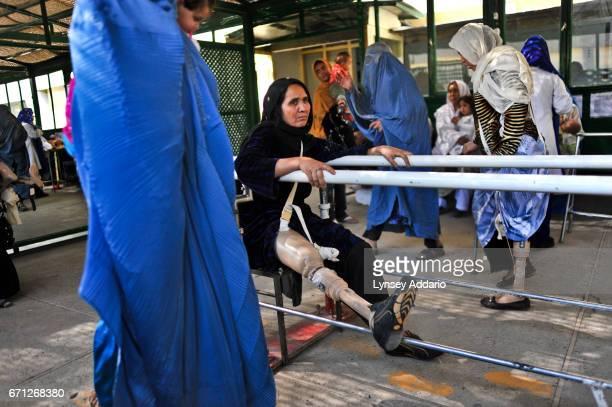Analhura around 50 from Bolang Village in Helmand sits without her leg in the ICRC center orthopedic center in Kabul Afghanistan Analhura lost her...