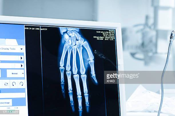 Analyse aux rayons x ou scann radiography dans hospital