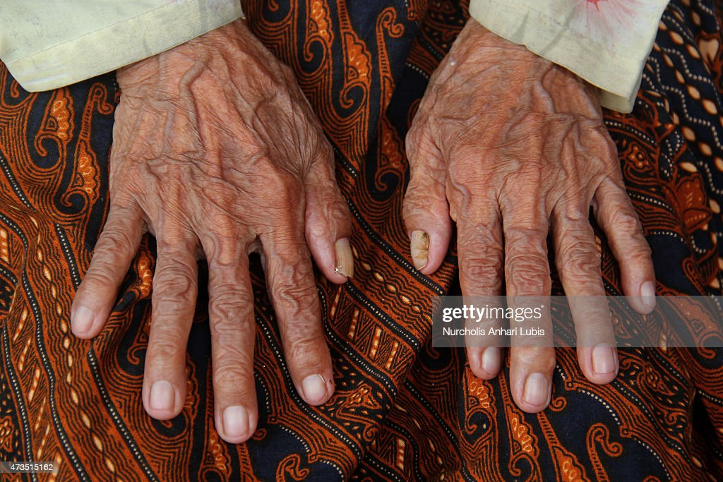 Anami shows her wrinkled fingers May 15, 2015 in Purwakarta, Indonesia ...